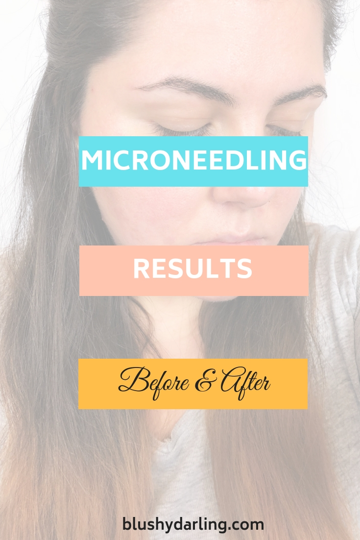 What is microneedling and how you can use it to reduce stretch marks, acne scars, pores and wrinkles at home