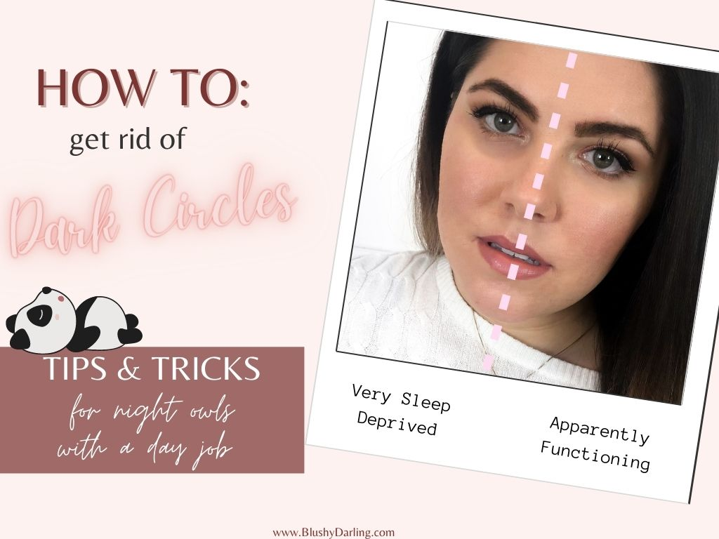 How To: Get Rid Of Dark Circles